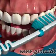 Как правильно чистить зубы щеткой