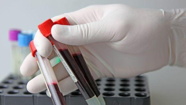 Сдача анализа крови на ВИЧ